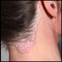 Psoriasis Doctors in Hyderabad